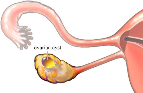 haemorrhagic ovarian cyst