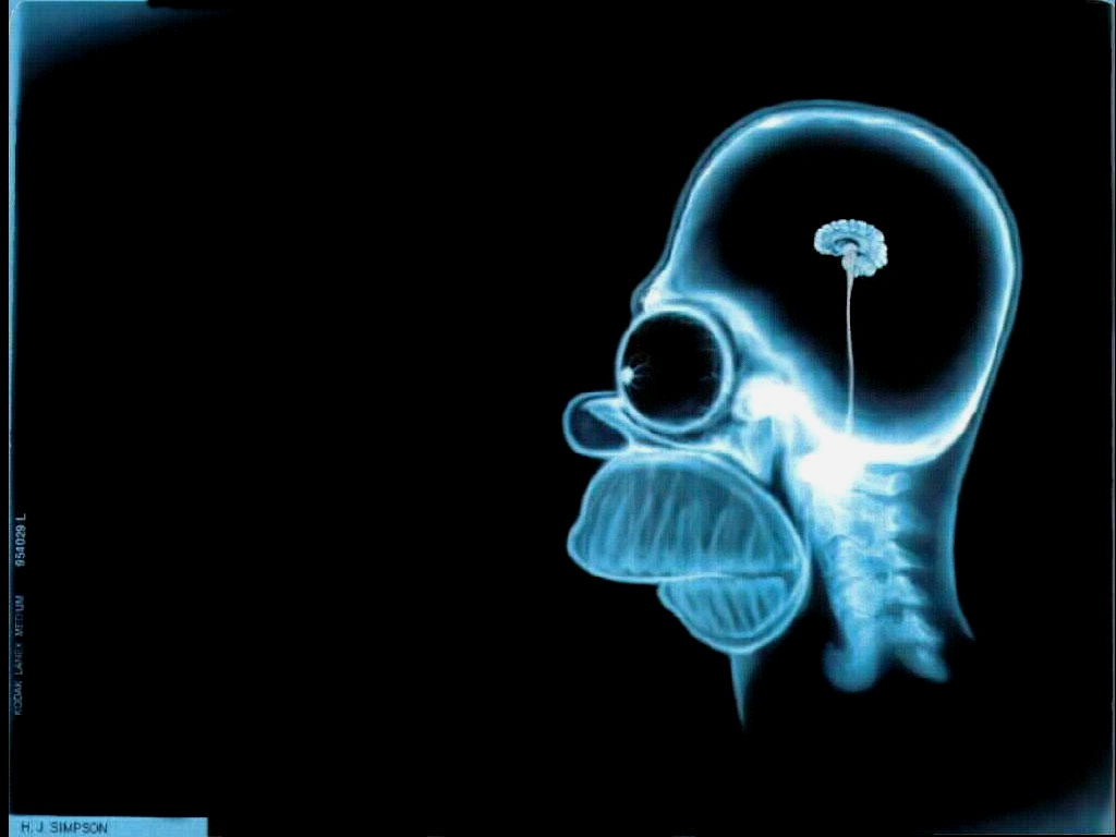 Homers Xray Brain Wallpaper